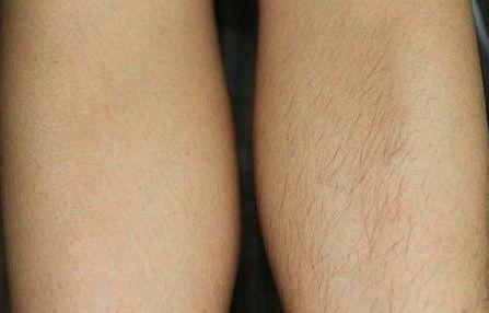 до и после ноги