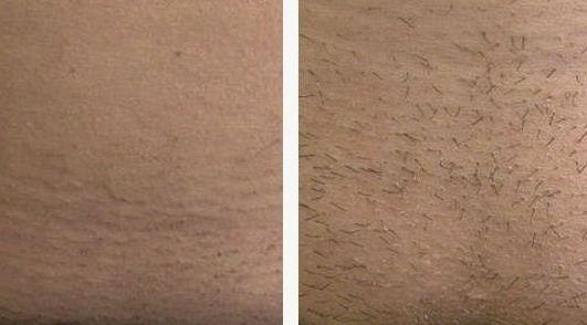 лобок до и после