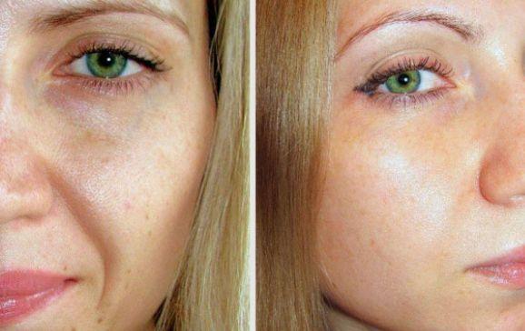 фото лица до и после
