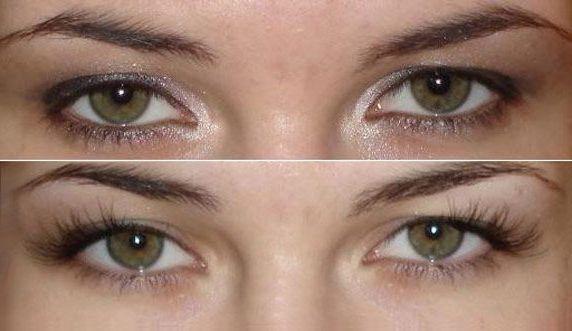 глаза до и после