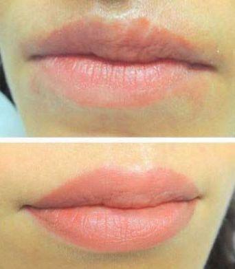 губы натальи