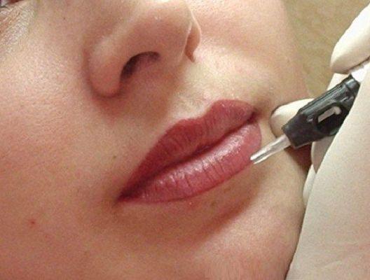 подтяжка губ